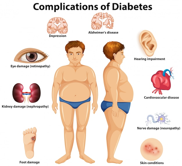 Komplikationen des diabetes-konzeptes