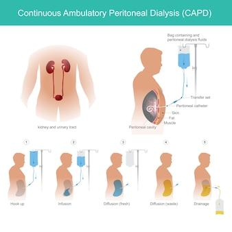 Kontinuierliche ambulante peritonealdialyse capd. dies ist eine technische verwendung der bauchhöhle, um dialyseflüssigkeit für die durchlässigkeit eines kapillarbluts in einer bauchhöhle zu transportieren.