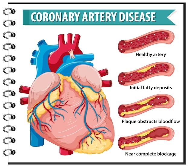Koronare herzkrankheit für die gesundheitserziehung infografik