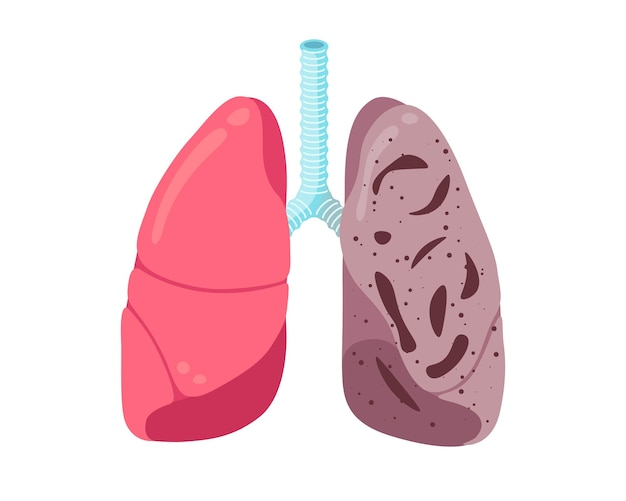 Kranke ungesunde lungen tuberkulose-infektion krankheit des menschlichen atmungssystems inneres organ tuberkel