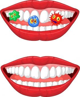 Lächelnde lippe mit mikrobe