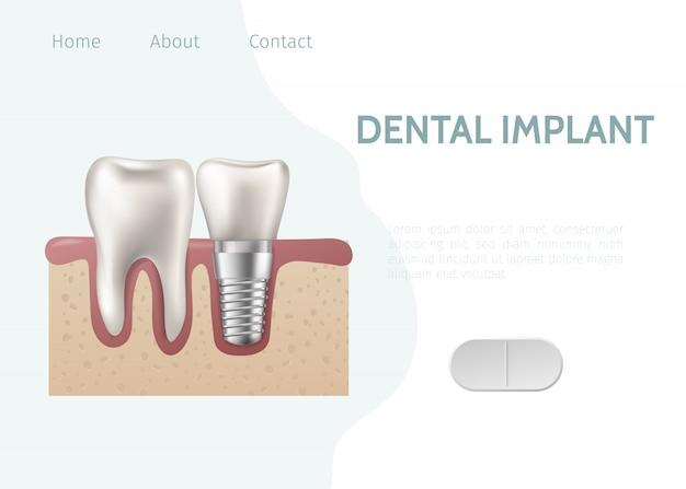 Landing page oder web template für zahnklinik. zahnimplantatstruktur mit allen teilen krone, abutment, schraube