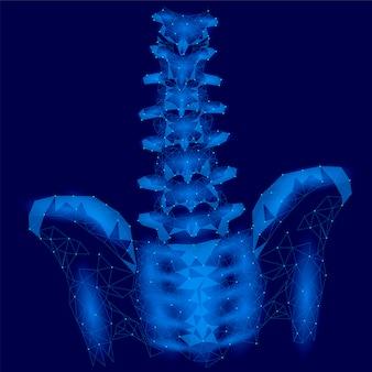 Lumbale radikulitis der menschlichen wirbelsäule schmerzt niedriges poly, geometrisches polygonales partikel