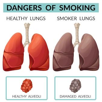 Lunge eines gesunden menschen und eines rauchers.