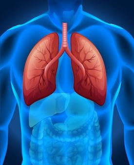 Lungenkrebs beim menschen