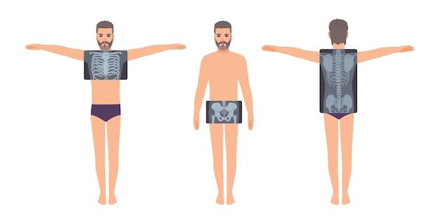Männlicher patient und sein brust-, becken- und rückenröntgenbild lokalisiert auf weißem hintergrund. bärtiger mann und röntgenbilder seines skelettsystems auf dem monitor. flache cartoon bunte vektor-illustration.