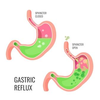 Magen-reflux-illustration. geschlossener und offener schließmuskel. visualisierung von körperstörungen.