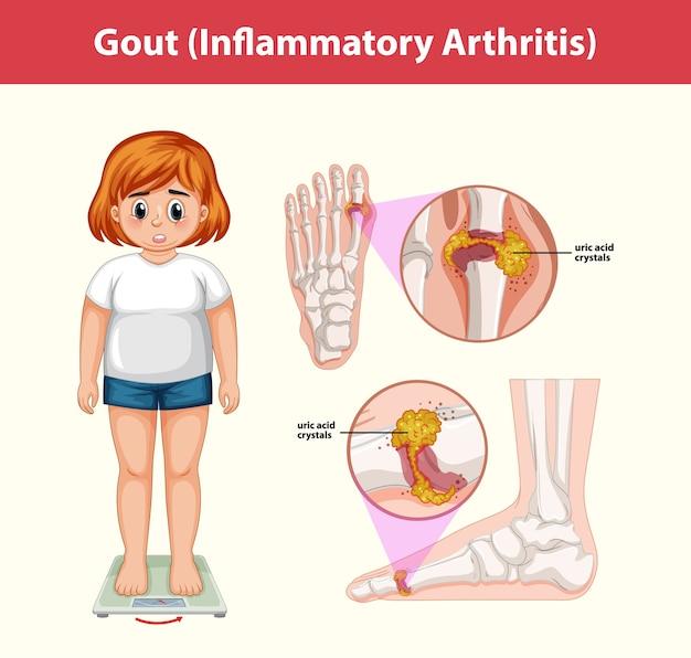Medizinische informationen zur gicht (entzündliche arthritis)