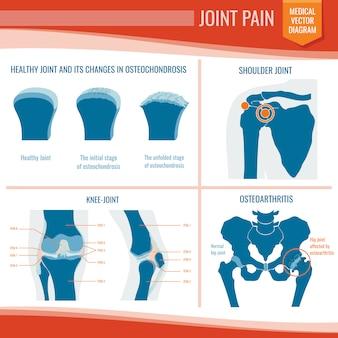 Medizinischer vektor der gelenkschmerzen der osteoarthritis und des rheumatismus infographic