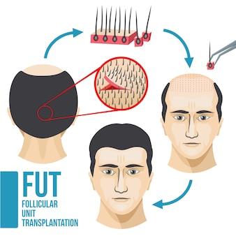Medizinischer vektor der männlichen haarausfallbehandlung infographic