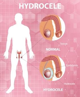Medizinisches poster, das den unterschied zwischen männlichem normalem hoden und hydrocele zeigt