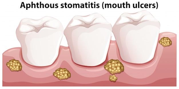 Menschliche anatomie der aphthösen stomatitis