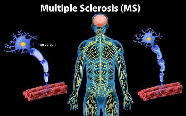 Menschliche anatomie der multiplen sklerose