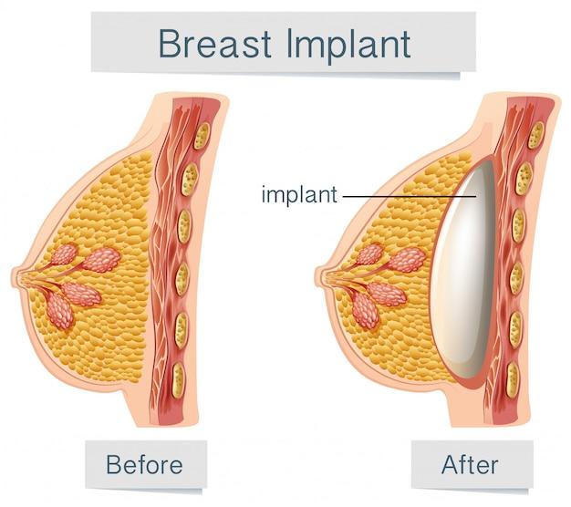 Menschliche anatomie des brustimplantats