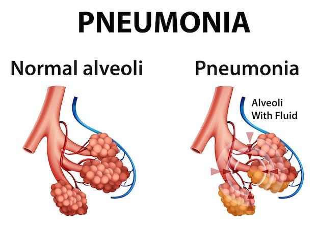 Menschliche anatomie mit lungenentzündung