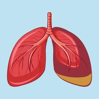 Menschliche lunge mit pleuramesotheliom