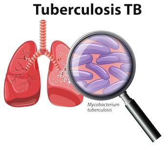 Menschliche Lunge mit Tuberkulose