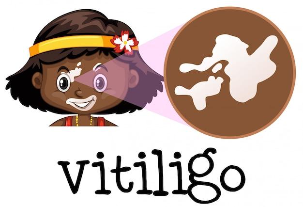 Menschliche medizinische ausbildung von vitiligo