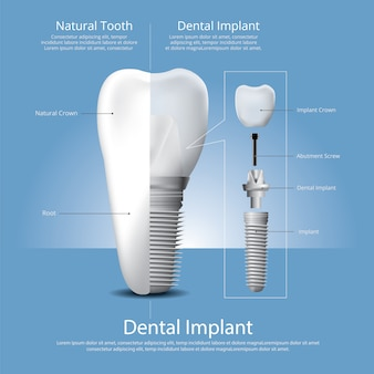 Menschliche zähne und zahnimplantat