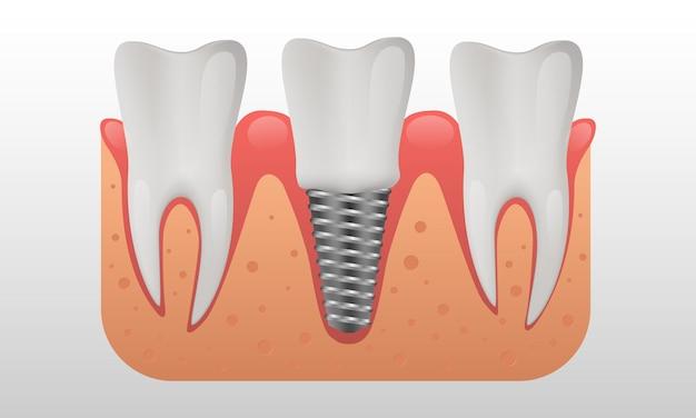 Menschliche zähne und zahnimplantate