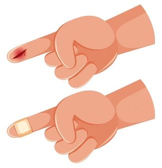 Menschlicher handfinger geschnitten