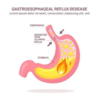 Menschlicher magen. gastroösophageale refluxkrankheit. gerd, sodbrennen, mageninfografik. säure, die in die speiseröhre aufsteigt.