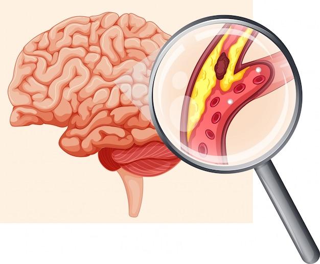 Menschliches gehirn mit atherosklerose