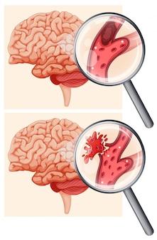 Menschliches gehirn und hämorrhagischer schlaganfall