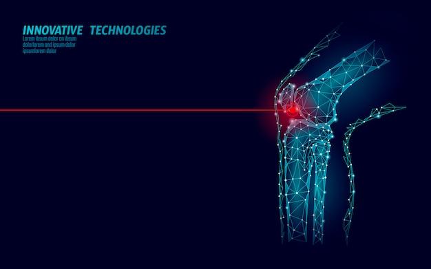 Menschliches kniegelenk 3d modellvektorillustration. low poly design zukunftstechnologie heilen schmerzbehandlung.