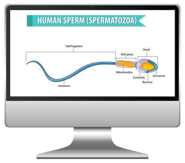 Menschliches spermiendiagramm auf computerbildschirm