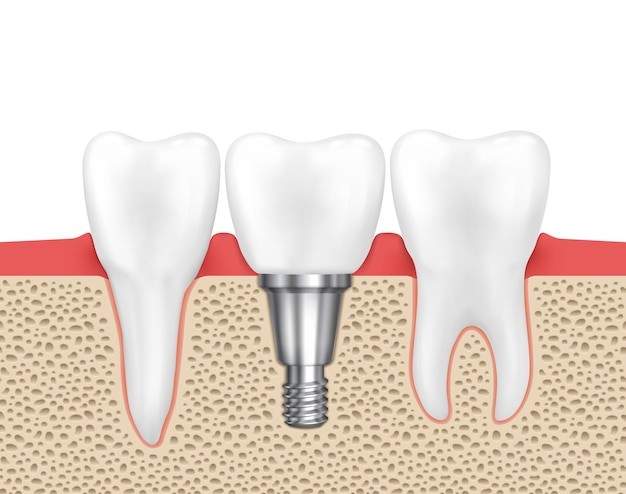 Menschliches zahnimplantat. medizinische menschliche zahn-, implantatzahn-, zahnheilkundeimplantatzahn-, zahnimplantatvektorillustration