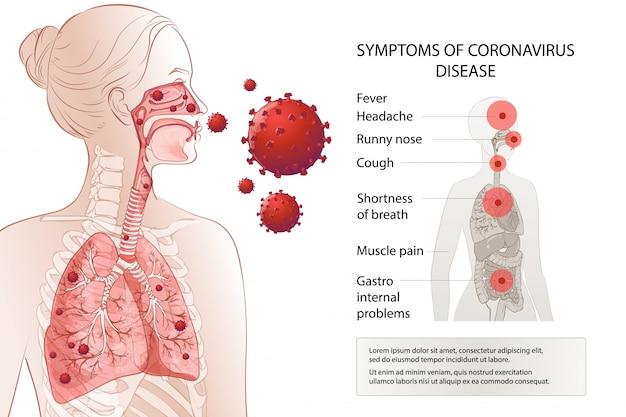 Neuartiger coronavirus-stopp. risikofaktoren für humane mers-cov-symptome. virusausbruch verbreitete pandemie. gesundheits- und medizinische tests, screening. atemwege, atmung. diagramm infografik