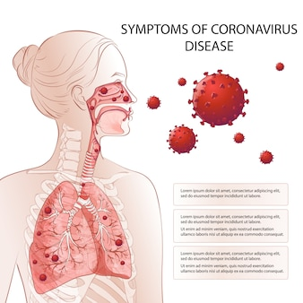 Neuartiges coronavirus (2019-ncov) wird gestoppt. risikofaktoren für humane mers-cov-symptome. virusausbruch verbreitete pandemie. gesundheits- und medizinische tests, screening. atemwege, atmung. vektordiagramm infografik