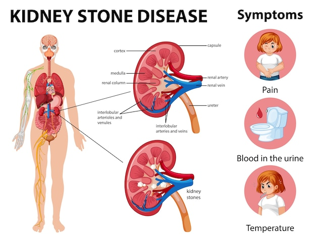 Nierensteinkrankheit und symptome infografik