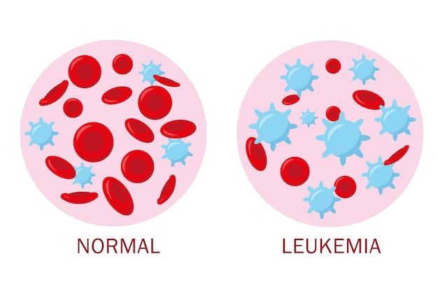 Normales blut und leukämieblut für das medizinische konzept. banner für blutanalyse oder leukämie-test.