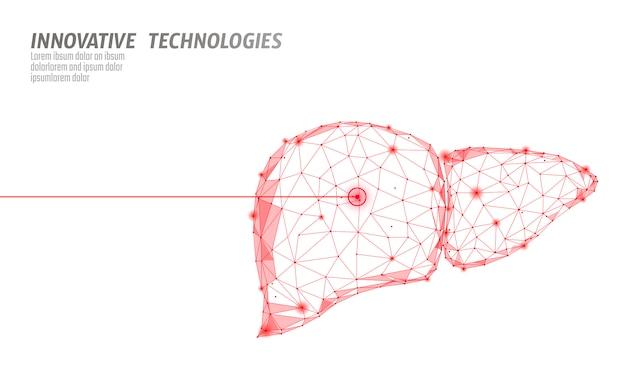 Operation der menschlichen leberlaseroperation low poly. medizin krankheit arzneimittelbehandlung schmerzhaften bereich. polygonale 3d-renderform mit roten dreiecken. apotheke hepatitis krebs vorlage illustration