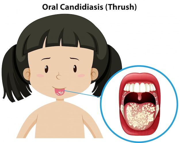 Orale candidiasis thursh auf mädchen