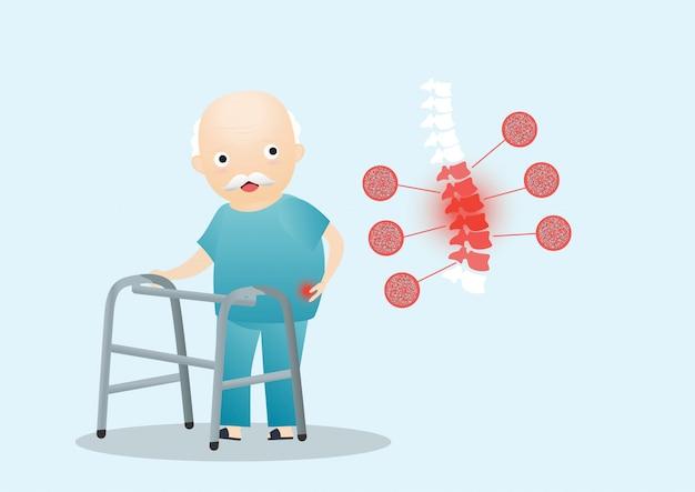 Osteoporose des alten mannes.