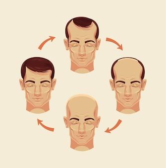 Phasen der flachen karikaturillustration der glatze