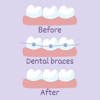 Phasen der zahnausrichtung vorher und nachher mit brackets korrektur von zähnen mit kieferorthopädischen zahnspangen