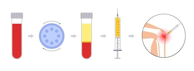 Plättchenreiches plasmakonzept