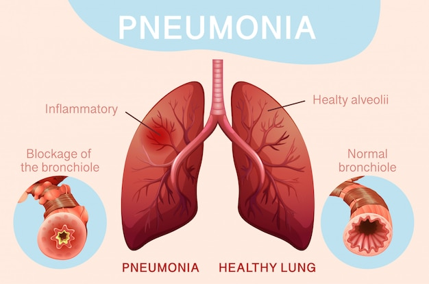 Plakatgestaltung für lungenentzündung mit menschlicher lunge
