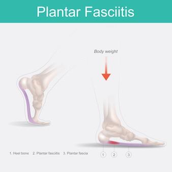 Plantarfasziitis. illustration der menschlichen fußanatomie erklärt das symptom plantarfasziitis.