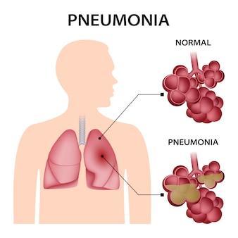 Pneumonie-konzept