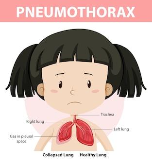 Pneumothorax-diagramm der menschlichen anatomie
