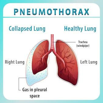 Pneumothorax-diagramm mit kollabierter lunge und gesunder lunge