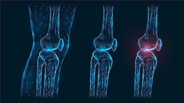 Polygonale vektorillustration oberschenkel- und kniegelenk-seitenansicht. krankheit, schmerz und entzündung des kniegelenks. low-poly-modell eines gesunden und verletzten menschlichen knies