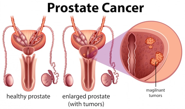 Prostatakrebs auf weißem hintergrund