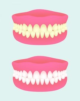 Prothese in zwei gesundheitszuständen. zahnimplantat mit verschiedenen zahnfarben. kranker und gesunder zahnkiefer. medizinische artikel.