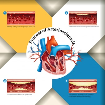 Prozess der arteriosklerose poster